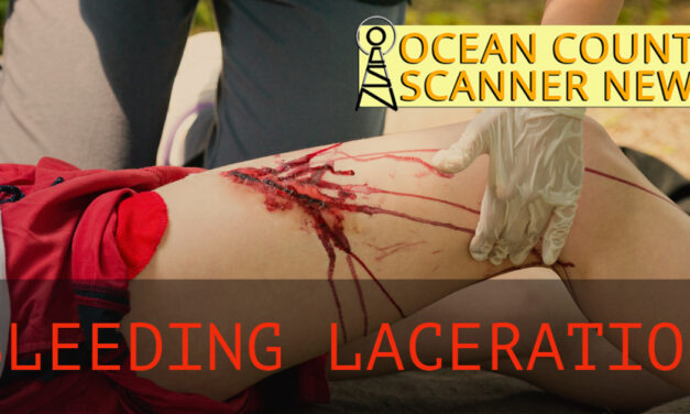 Seaside Heights: Male Bleeding From The Face