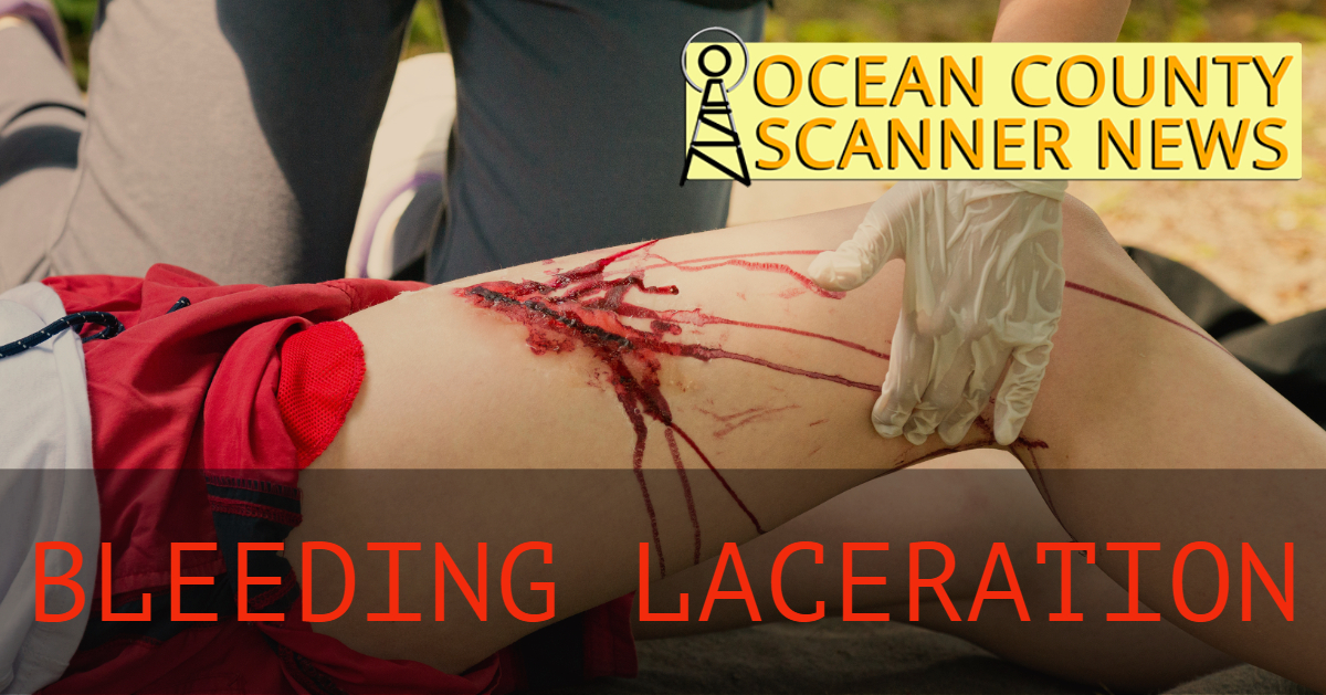 TOMS RIVER: 73yo With Bleeding Laceration